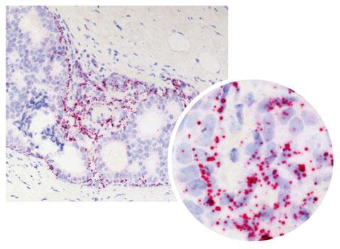乳癌FFPE組織のEGFR検出例