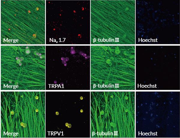 各Ion Channelの発現を免疫染色で確認