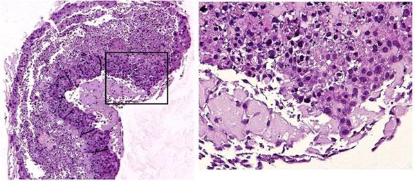 Axol ヒト肝細胞(Human Hepatoc...