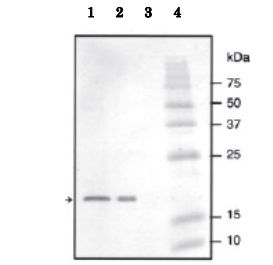 ></p> <p>Identification of NADase inhibitor in crude extracts by western blotting with anti NADase inhibitor antibody. The antibody was used at 1/3,000 dilution. <br/>1. Cell lysate of S. dysgalactiae <br/>2. Cell lysate of E. coli overexpressing His-tagged NADase NADase inhibitor. <br/>3. Culture supernatant of S. dysgalactiae <br/>4. Molecular size markers.</p>                 </div>         </div>                                                                <section class=