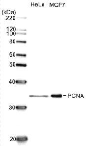 全細胞抽出物中のPCNAのウェスタンブロット