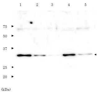 PCNAタンパク質のウェスタンブロット