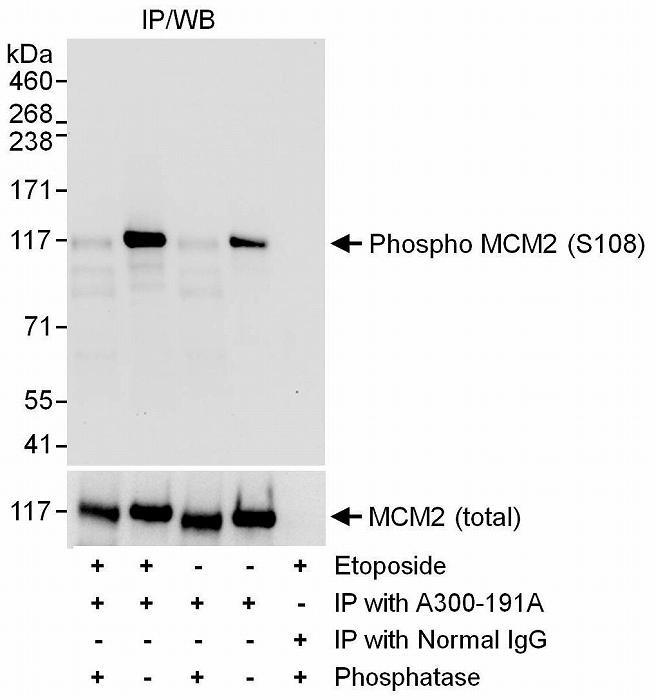 ウェスタンブロットよるヒトリン酸化 MCM2 (Ser108) の検出
