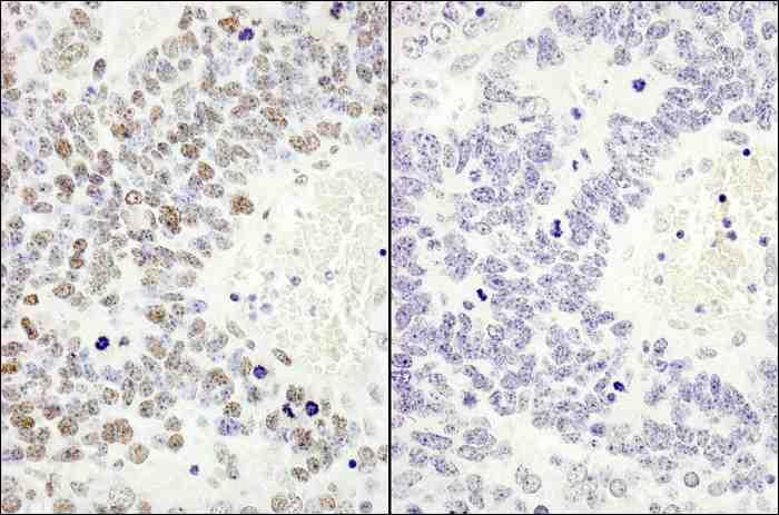 免疫化学染色によるヒト リン酸化MCM2 (S53) の検出