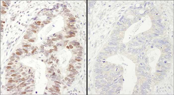 免疫化学染色によるヒト リン酸化MCM2 (S40/S41) の検出