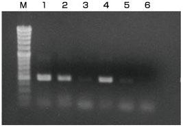 マウステールからのDNA抽出・検出例