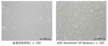 脂肪由来ヒトMSC の3 日間培養後の形態写真(播種時 の細胞密度:6,000 cells/cm2)。