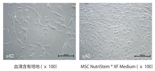 骨髄由来ヒトMSC の3 日間培養後の形態写真(播種時 の細胞密度:5,000 cells/cm2)。