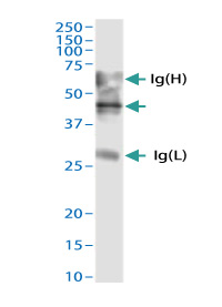 ADAMTS4認識ウサギポリクローナル抗体 - 免疫沈降の適用例