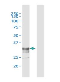 ADAMTS4認識ウサギポリクローナル抗体 - ウェスタンブロットの適用例