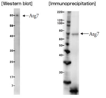 ヒトAtg7検出モノクローナル抗体によるウェスタンブロット解析