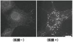 細胞免疫染色用LC3検出モノクローナル抗体