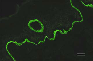 モノクローナル抗体279を用いたヒト皮膚組織のIF解析結果|マトリックスタンパク質検出用抗体