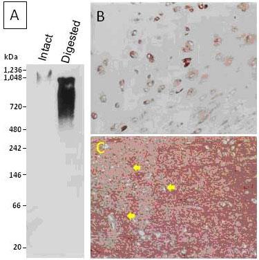 クローン5G2(品番:PRPG-AG-M03)を用いたアグリカン検出例|プロテオグリカン検出抗体