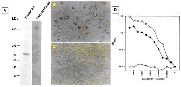 クローン490D11(品番:PRPG-CP-M02)を用いたCOMP検出例|プロテオグリカン検出抗体