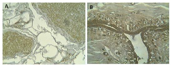 モノクローナル抗体889C7を用いたDecorinの組織染色図