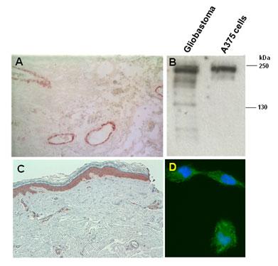 A) 悪性グリア芽腫及び C) 皮膚黒色腫の免疫染色図。B) グリア芽腫及びヒトミエローマA375細胞株由来のライセートにおけるウェスタンブロット図 (還元条件下で4-10%グラジェンドゲルでSDS-PAGEを行った後ウェスタンブロットを行った)。D)ヒトミエローマ MeWo細胞の免疫染色図。ヘキストで対比染色を行った。