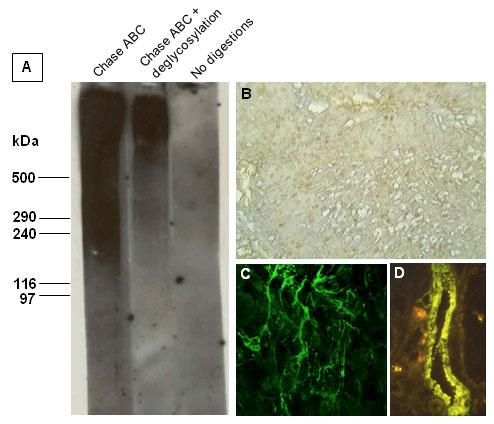 モノクローナル抗体5C12を用いたVersicanの解析結果