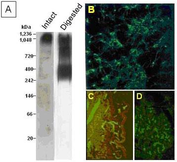クローン4C5(品番:PRPG-VS-M02)を用いたVersican検出例|プロテオグリカン検出抗体
