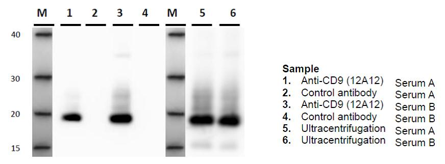 IP-WB of exosome in serum sample using Anti-CD9 antibody (12A12)