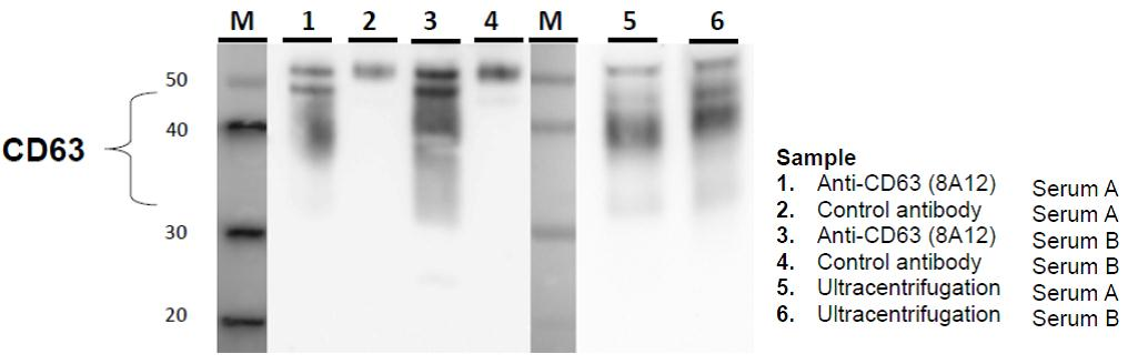 IP-WB of exosome in serum sample using Anti-CD63 antibody (8A12)