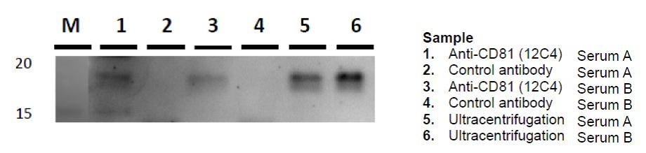 IP-WB of exosome in serum sample using Anti-CD81 antibody (12C4)