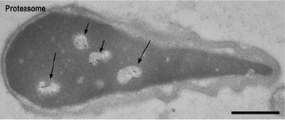 クローンGC3αを用いたマウス精子中のプロテアソームにおける局在解析(免疫電子顕微鏡)