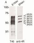 4R-tau 抗体:主に認知症、タウオパチーの研究に