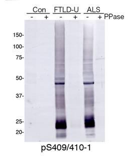 FTLU-UおよびALSの組織抽出液におけるウェスタンブロット解析(品番:TIP-PTD-P01)