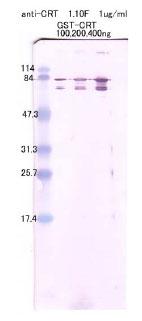 Anti Calreticulin N-terminal monoclonal antibody [Clone:1-10F]