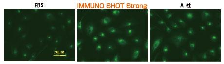 A549細胞のVimentine を染色した結果