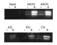ヒストンタンパク質の免疫沈降