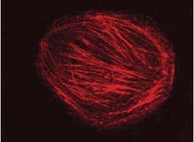 CHO細胞に顕微注入したローダミン標識アクチン