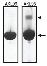 ウサギ骨格筋由来アクチンタンパク質の純度