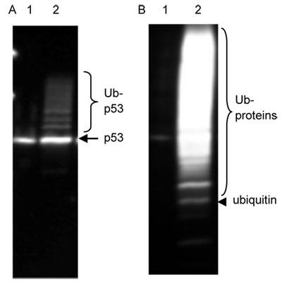 ユビキチン化 p53 および 総ユビキチン化タンパク質の検出