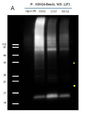 Signal Seeker™ SUMO化タンパク質濃縮キットを用いた免疫沈降