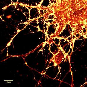 SiR-actinで染色したラット海馬ニューロン培養細胞のSTED 画像