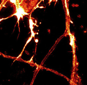 180 nm 間隔で明瞭なアクチンリング(縞模様)を観察できる。