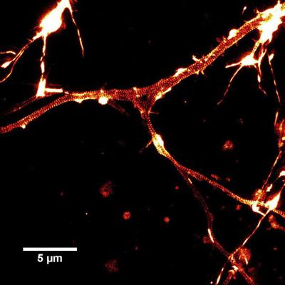 SiR-actinで染色した培養したラット海馬ニューロンのSTED画像。