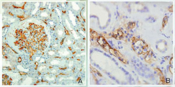 本製品で染色したホルマリン固定・パラフィン包埋ヒト移植腎臓