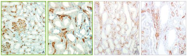 形態的な変化を伴う慢性的なAMR(糸球体症及び毛細血管炎)を示す機能不全移植片
