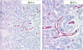 マウス腺癌の血管及び毛細血管内皮細胞のCD31抗体(クローン:SZ31)による特異的染色