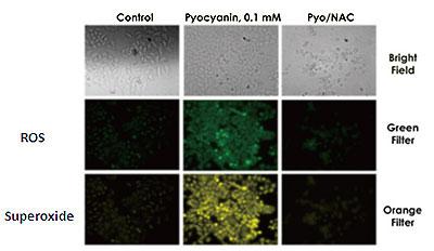 蛍光顕微鏡観察による活性酸素種の形成プロファイリング
