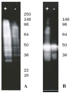 S100ユビキチン結合アッセイによるウエスタンブロット結果