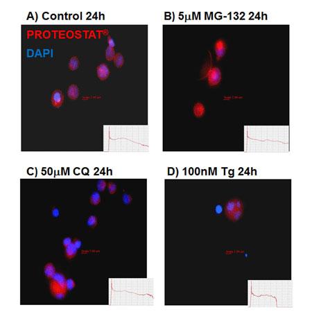 オートファジーに関連するERストレスによって誘導されたアグリソームやアグリソーム様封入体 (ALSI) の落射蛍光顕微鏡画像