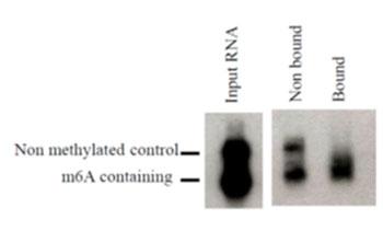 N6-メチルアデノシン モノクローナル抗体(17-3-4-1)を用いて、合成したメチル化転写産物を精製した。