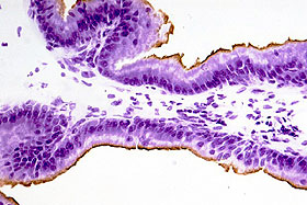 ラット前立腺の凍結切片(12 µm)をサイトケラチン18で免疫染色し(茶色)、その後 FD クレシルバイオレット溶液で対比染色した。