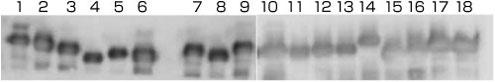 HLA classI 抗体を使用したウェスタンブロッティング(リコンビナントHLA-A,B,C重鎖)