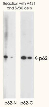 使用例 - p62抗体