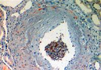 ヒトC4d抗体による染色結果